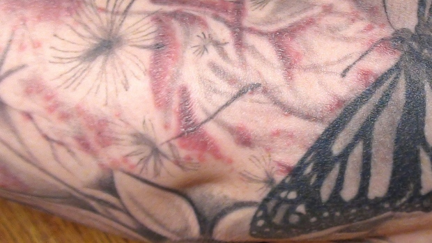 Investigators trace nasty tattoo infections in 4 states to for How to treat an infected tattoo at home