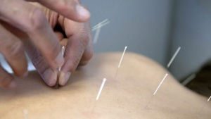 Dr. Randy Zhang applies acupuncture needles on a patient who suffered back injuries during an automobile accident at China Acupuncture Clinic in Tyler, Texas. (AP /The Tyler Morning Telegraph, Jaime R. Carrero)