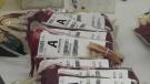 CTV Toronto: Alternatives to blood transfusion