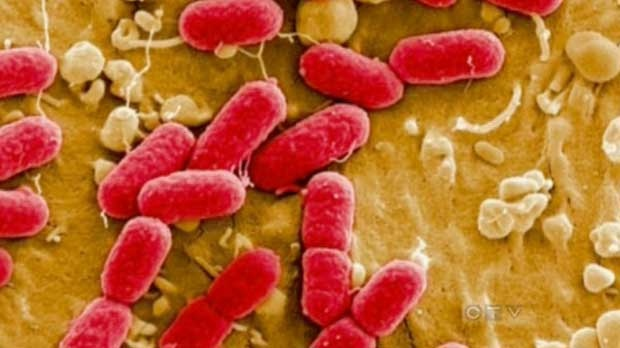 E. coli outbreak in Nova Scotia