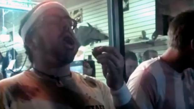 Florida roach-eating contest winner dies