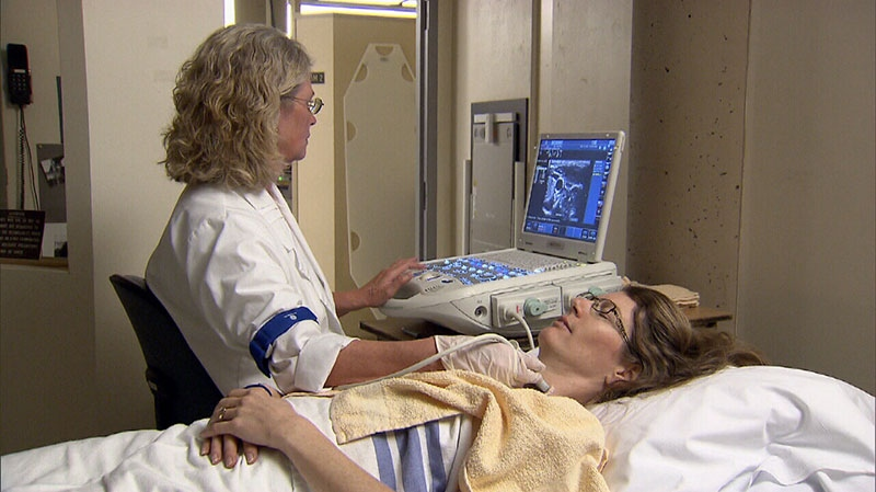 A Canadian study tracks 80 multiple sclerosis patients who underwent 'liberation therapy'.